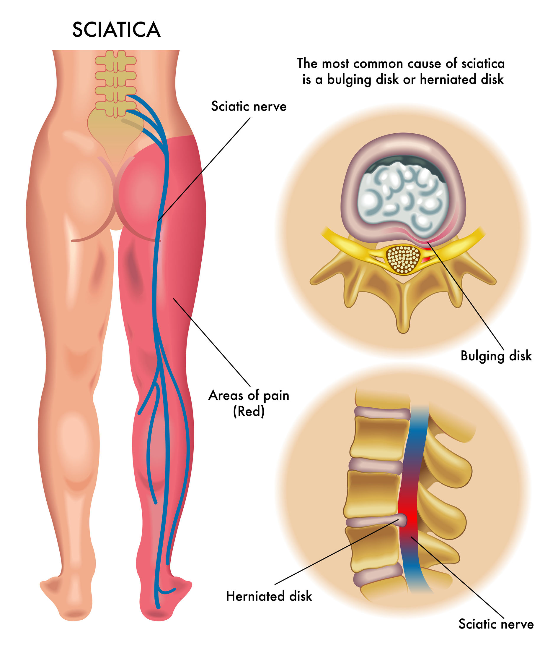 sciatica: causes and treatment - eng eme physio, Skeleton