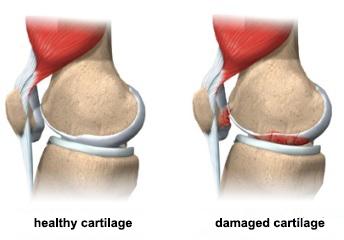 ginocchio-usura-cartilagine